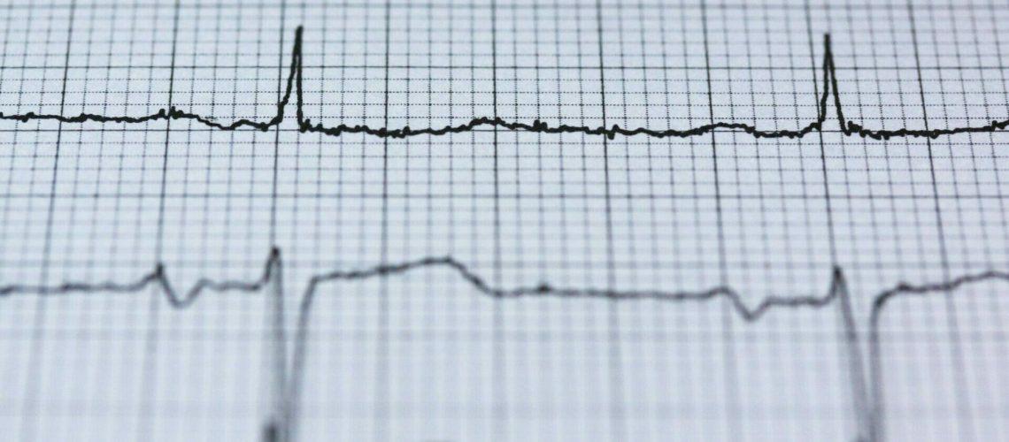 Hartritmevariabiliteit en hartcoherentie - blogartikel hartcoherentietraining.be - Oosterzele - Gent - Mathieu Devies